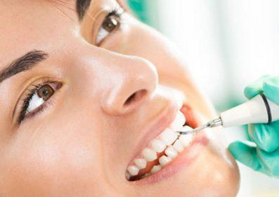Szívinfarktushoz vezethet a fogkő
